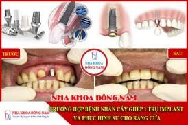 Trường hợp bệnh nhân cấy 1 trụ implant răng cửa