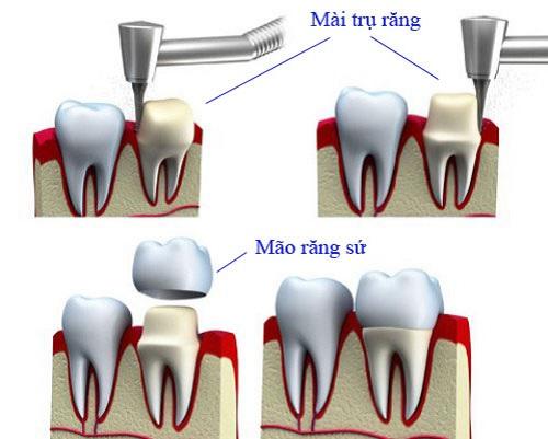Trường hợp bọc 20 sứ Emax phục hình thẩm mỹ cho răng 1