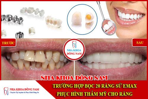 Trường hợp bọc 20 sứ Emax phục hình thẩm mỹ cho răng