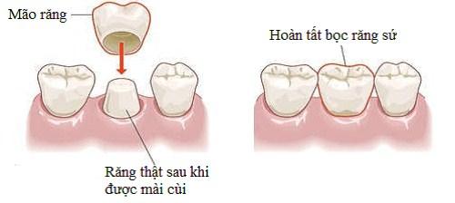 Trường hợp bọc răng sứ phục hình 5 răng cửa hàm trên 1