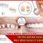 Trường hợp bọc răng sứ phục hình 5 răng cửa hàm trên