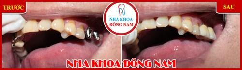 cấy ghép implant răng hàm trên 1