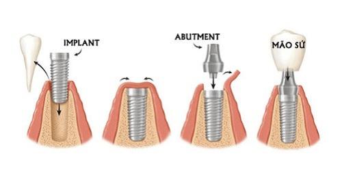 Trường hợp cấy ghép 1 trụ Implant 1