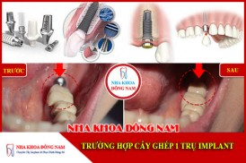 Trường hợp cấy ghép 1 trụ Implant