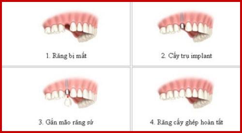 Trường hợp cấy ghép 1 trụ implant hàm dưới 1