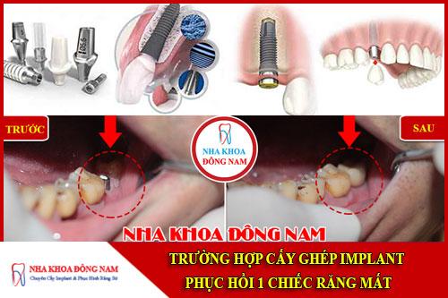 Cấy ghép implant phục hồi 1 chiếc răng mất