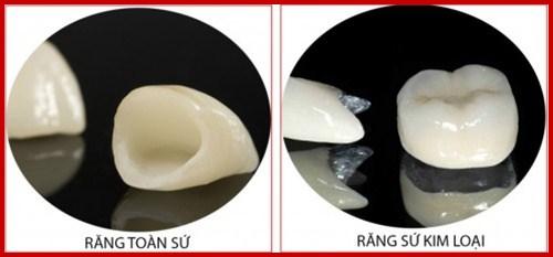 Trường hợp thay răng sứ kim loại bằng răng sứ Hi-Zirconia 1