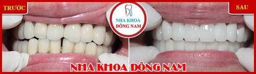 Trường hợp thay răng sứ kim loại bằng răng sứ Hi-Zirconia 2