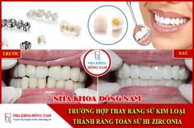 Trường hợp thay răng sứ kim loại bằng răng sứ Hi-Zirconia
