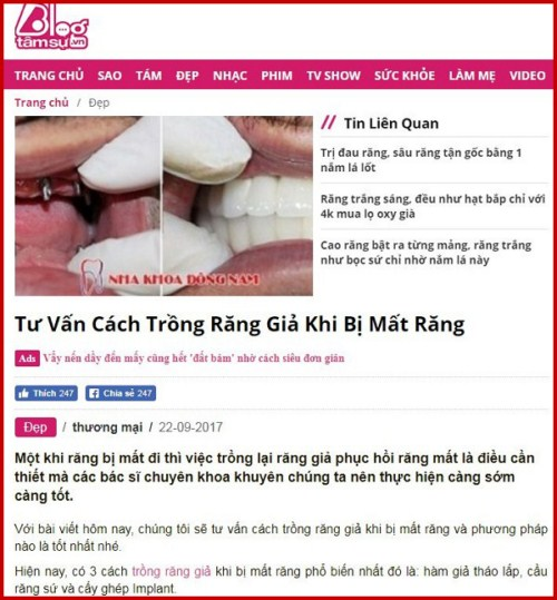 Tư vấn cách trồng răng giả khi bị mất răng 1