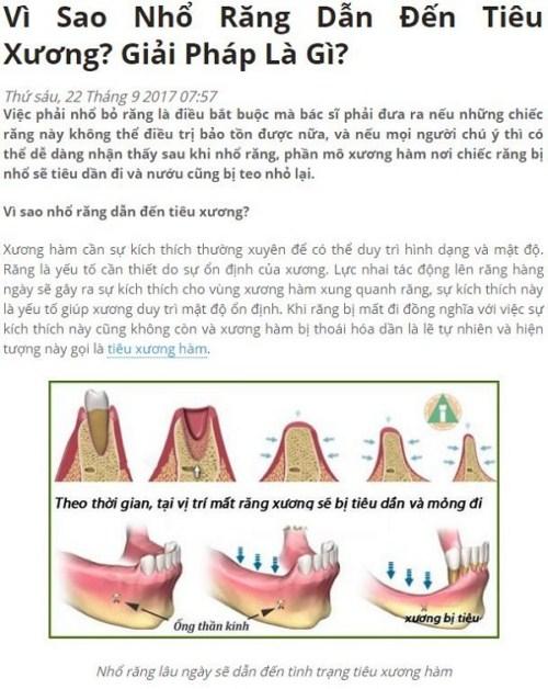 Vì sao nhổ răng dẫn đến tiêu xương1