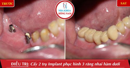 Cấy ghép Implant ngăn tình trạng tiêu xương hàm khi mất răng