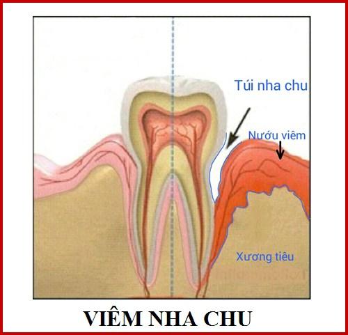 Bệnh viêm nha chu và những lý do cần phòng tránh