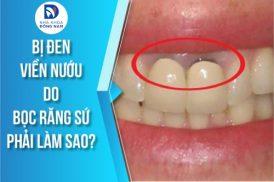 Bị đen viền nướu do bọc răng sứ thì khắc phục bằng cách nào?