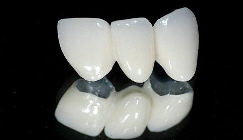 Bị đen viền nướu do bọc răng sứ 1
