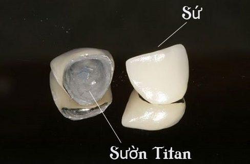 Bị đen viền nướu do bọc răng sứ 2