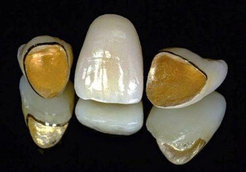 Bị đen viền nướu do bọc răng sứ 3