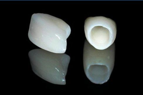 Bị đen viền nướu do bọc răng sứ 4
