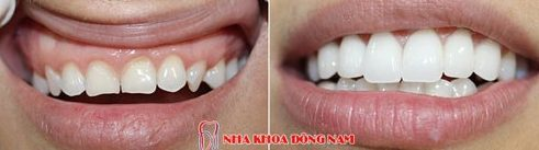Bị đen viền nướu do bọc răng sứ 5