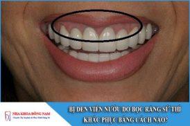 bị đen viền nướu do bọc răng sứ thì khắc phục bằng cách nào