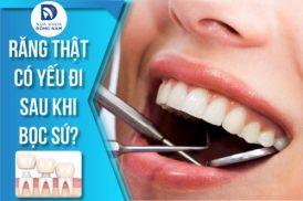 Bọc Răng Sứ có làm cho răng thật yếu đi không?