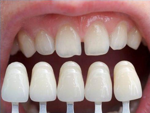 bọc răng sứ có làm cho răng thật yếu đi không 1