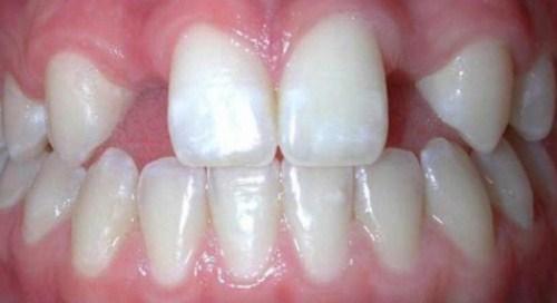 cấy ghép Implant cho người thiếu răng bẩm sinh-1