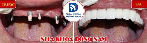 cấy ghép Implant cho người thiếu răng bẩm sinh-10