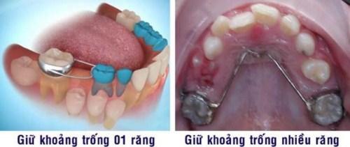 cấy ghép Implant cho người thiếu răng bẩm sinh-3