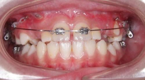 cấy ghép Implant cho người thiếu răng bẩm sinh-4