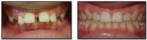 cấy ghép Implant cho người thiếu răng bẩm sinh-6