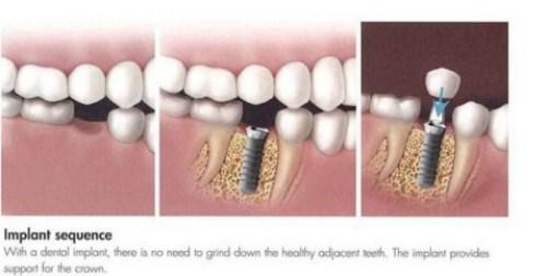 cấy ghép Implant cho người thiếu răng bẩm sinh-8