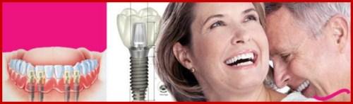 Các biến chứng có thể gặp khi cấy ghép implant 1