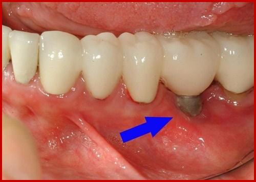 Các biến chứng có thể gặp khi cấy ghép implant 5