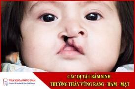 Các dị tật bẩm sinh thường thấy ở vùng răng hàm mặt