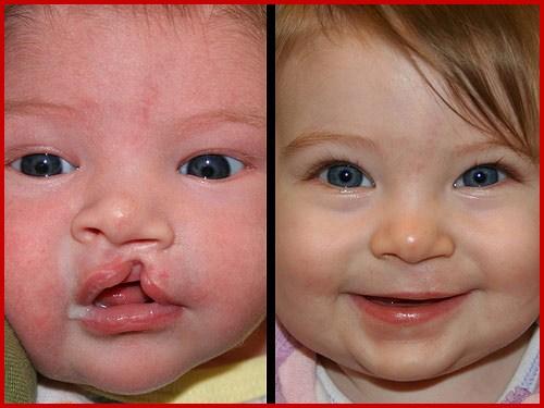 Các dị tật bẩm sinh thường thấy ở vùng răng hàm mặt 4