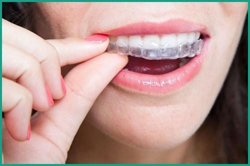 Các loại hàm duy trì niềng răng hiện nay 2
