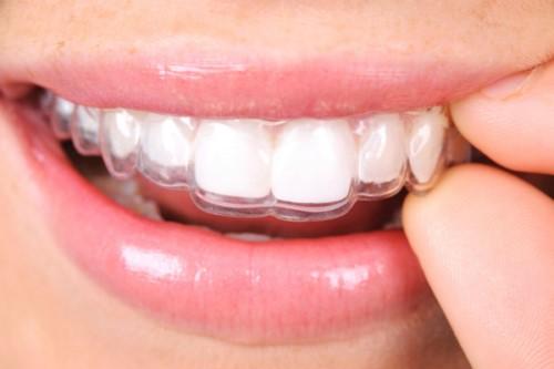 đeo hàm duy trì niềng răng trong bao lâu