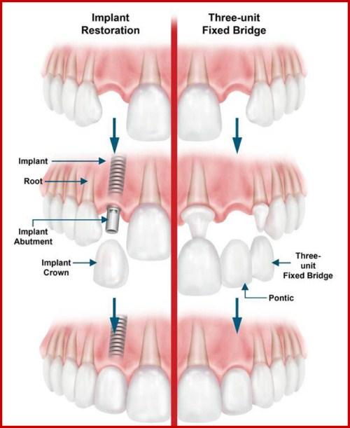 Cấy ghép Implant có những lợi ích gì 2