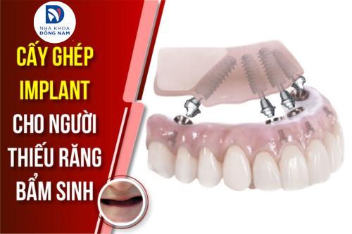 Cấy Ghép Implant cho người thiếu răng bẩm sinh
