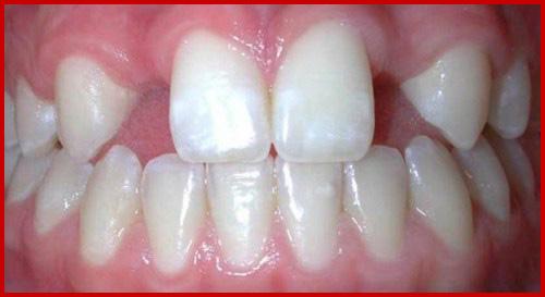 Cấy ghép implant mang lại hàm răng đầy đủ cho người thiếu răng bẩm sinh 1