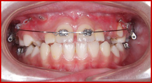 Cấy ghép implant mang lại hàm răng đầy đủ cho người thiếu răng bẩm sinh 2