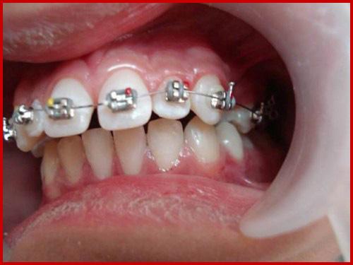 Cấy ghép implant mang lại hàm răng đầy đủ cho người thiếu răng bẩm sinh 3