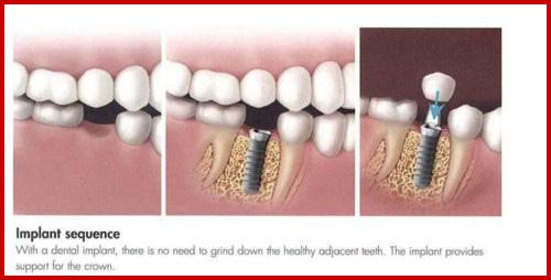 Cấy ghép implant mang lại hàm răng đầy đủ cho người thiếu răng bẩm sinh 4