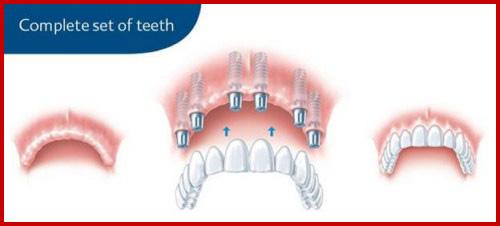 Cấy ghép implant mang lại hàm răng đầy đủ cho người thiếu răng bẩm sinh 5