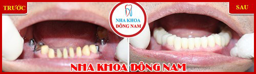 Cấy ghép implant mang lại hàm răng đầy đủ cho người thiếu răng bẩm sinh 6