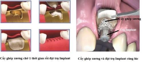 cấy ghép xương trong implant có dị ứng không