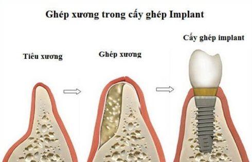 Cấy ghép xương trong implant có gây dị ứng không 1
