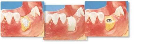 cấy ghép xương trong implant có gây dị ứng không 2