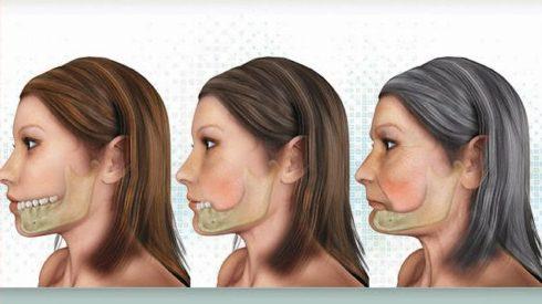 Chấm dứt tác hại của mất răng bằng phương pháp trồng răng implant 2